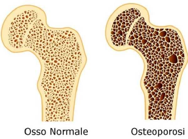 Osteoporosi cos'è sintomi trattamento